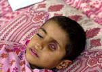 This 4-year-old Iraqi boy is suffering from a tumor growing in his eye.Photo:BBC