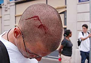 4. Head wound of brazilian journalist