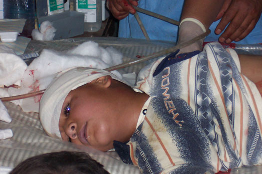 injured child with in Iraq