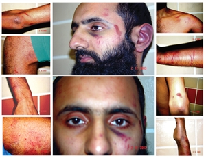 Some of Babars Injuries post police assault in December 2003
