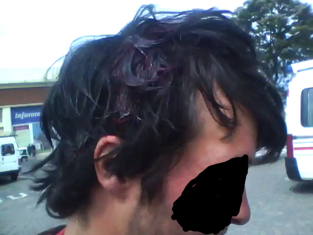 head injury sustained by the drum