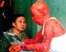 Major Tự Đức Phang was exposed to dioxin-contaminated Agent Orange